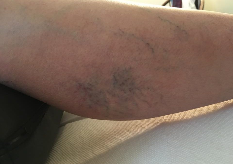 Improve Varicose Veins and Spider Veins with Acupuncture!